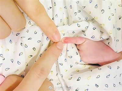 提醒!新生儿手指不能硬掰 违背发育生长规律