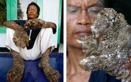 印尼 树人 手术后树皮复生 今后每年最少割两次