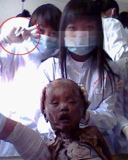 女生 解剖/一个解剖过的小孩。