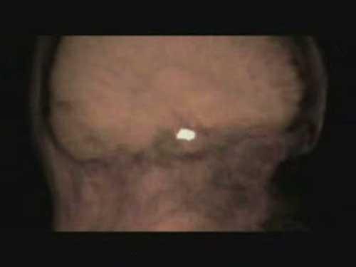 1女性的大脑中有一个小小的腺体——脑下垂体