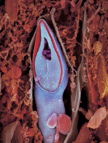 组图:精子发育成胎儿全过程超清晰照片 - 展望曙光 - 展望曙光